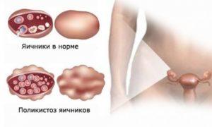 Поликистоз яичников: симптомы и лечение