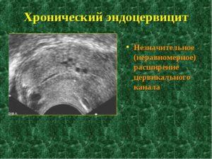 Лечение эндоцервицита народными средствами