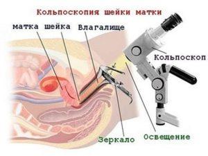 Операция по пластике шейки матки