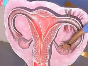 Причины варикоза матки
