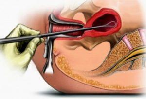 Диагностическое выскабливание полости матки при гиперплазии эндометрия