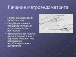 Лечение хронического метроэндометрита