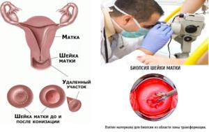 Биопсия шейки матки последствия
