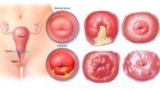 Лечение воспаления шейки и матки