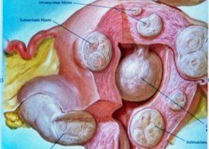 Узловая фибромиома матки