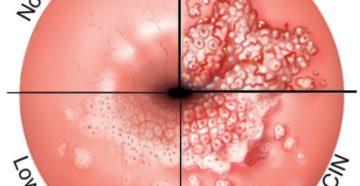 Вирус папилломы человека и эрозия шейки матки