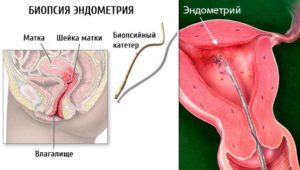 Что такое биопсия эндометрия