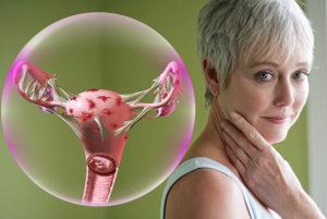 Лечение эндометриоза у женщин после 50 лет