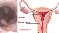Лечение полипа на яичнике