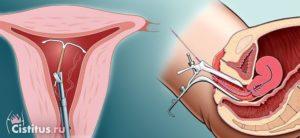 Как вытаскивают спираль из матки