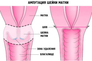 Удаление шейки матки при 3 степени дисплазии