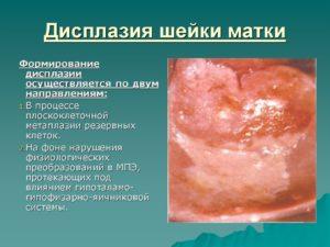 Симптомы и признаки дисплазии шейки матки