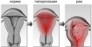 Симптомы гиперплазии эндометрия матки