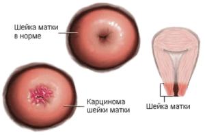 Симптомы и лечение папилломы матки