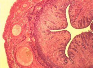 Гистология матки
