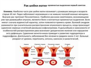 Выделения при раке матки