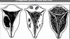 Что такое диффузный эндометриоз матки