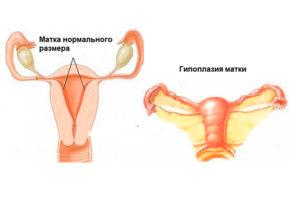 Что значит у женщины маленькая матка