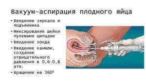 Вакуумная аспирация при замершей беременности