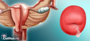 Лечение серозоцервикса