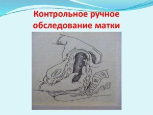 Ручное обследование матки после родов