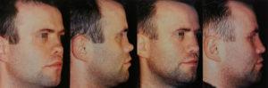 Почему проваливается нос при сифилисе