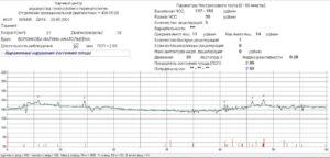 Индекс реактивности плода при ктг норма