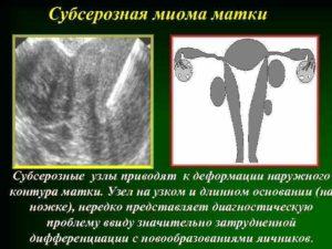 Лечение при субсерозном узле в матке