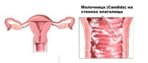 Причины вагинального кандидоза