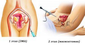 При каких размерах миомы матки делают операцию
