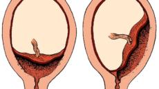 Плод прикреплен к задней стенки матки