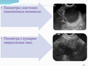 Кистозное изменение правого яичника что это такое