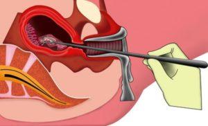 Выскабливание полости матки при кровотечении