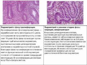 Эндометрий пролиферативного типа что это такое