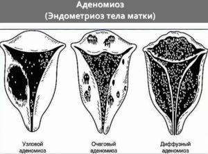 Диффузная форма аденомиоза