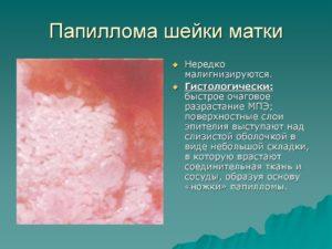 Причины папилломы на шейке матки