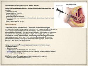 Лечение после удаления полипа в матке