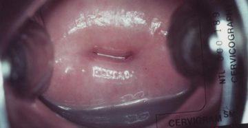 Как выглядит при осмотре рак шейки матки