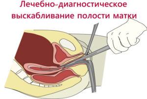 Чистка матки при кровотечении