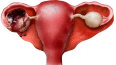 Кровотечение при кисте яичника: что делать