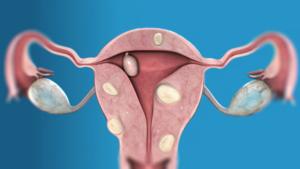 Многоузловая миома матки лечение