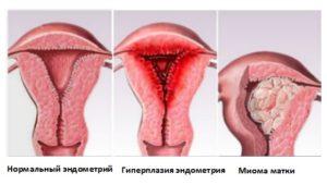 Почему не растёт эндометрий