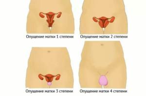 Опущение матки 2 степени что делать